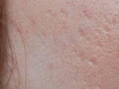 littekens ontstaan tijdens acne
