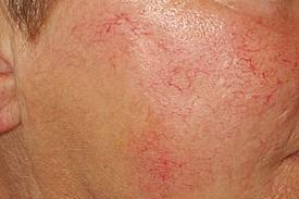 couperose aandoening in het gezicht